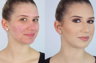 Jak wykonać makijaż dla cery trądzikowej?