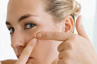 Jak rozpoznać cerę trądzikową? Pielęgnacja cery trądzikowej